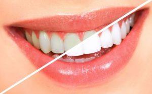 Bella teeth – opiniones – negativas - reales funciona – foro – España - Barcelona - que es
