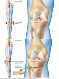 Osteoton – como tomarlo – composición – ingredientes – comentarios – como se toma